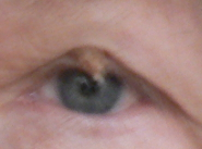 thing on my eyelidbetter shot