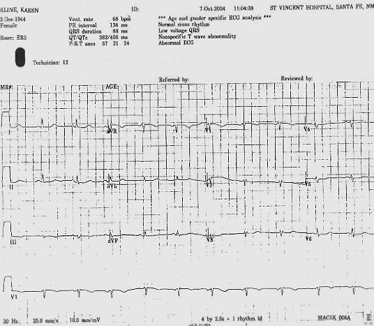 Abnormal ECG ·