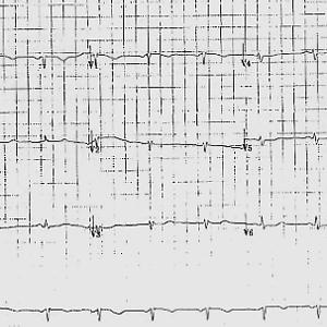 Abnormal ECG